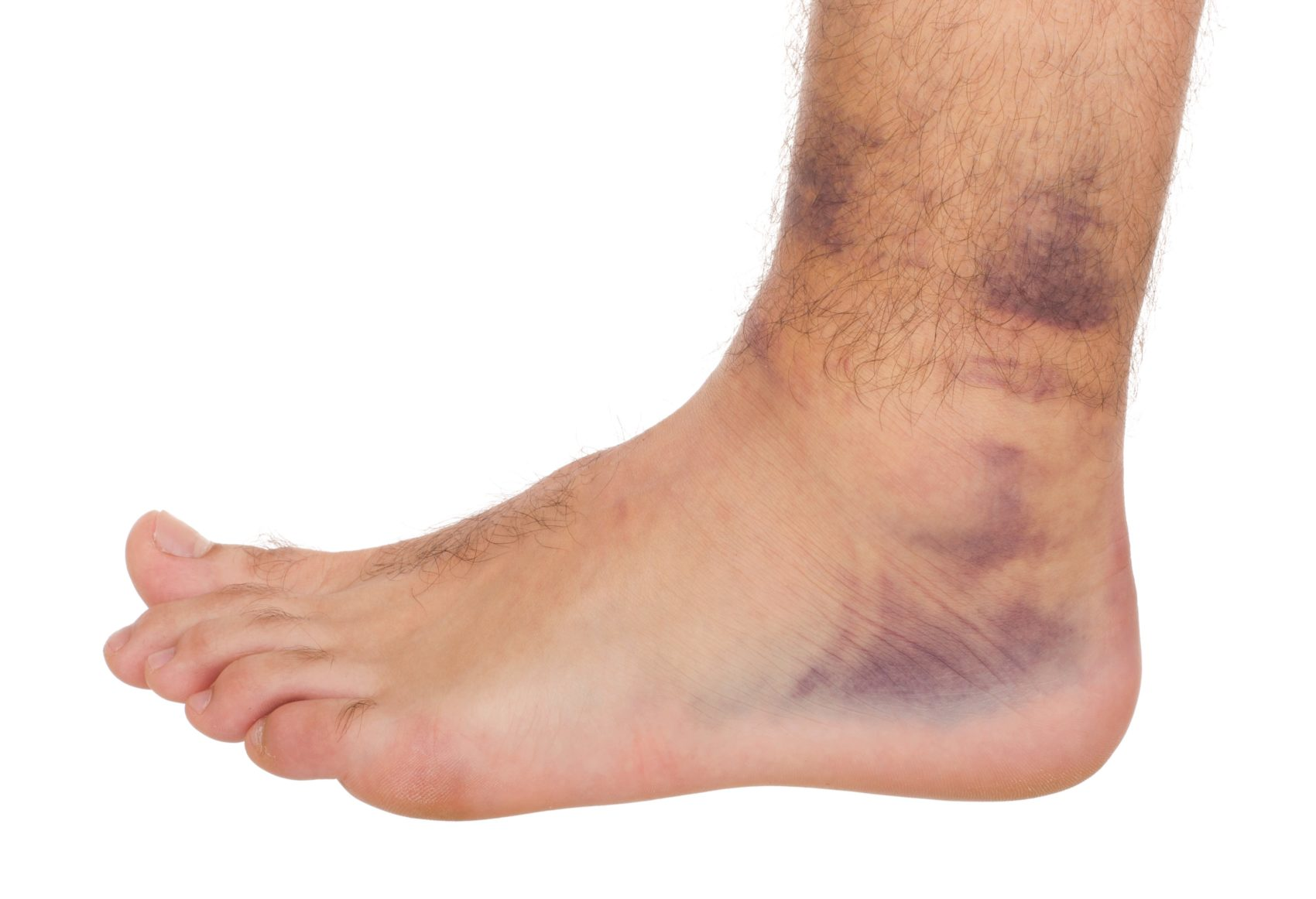 what is a bruise?   bend + mend: physiotherapy and pilates in